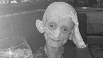 Biologicznie miała 144 lata. Zmarła 18-latka uwięziona w ciele staruszki